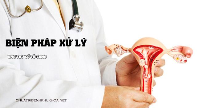 Biện pháp xử lý ung thư cổ tử cung
