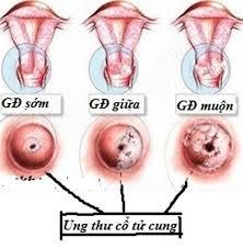 Cách chữa bệnh ung thư cổ tử cung theo từng giai đoạn
