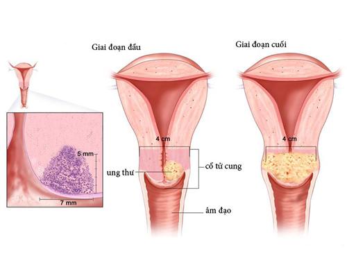 Những triệu chứng của bệnh ung thư cổ tử cung