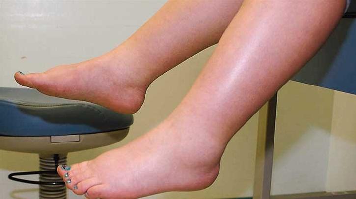 Sưng chân là triệu chứng viêm nhiễm phụ khoa bị nhiều người bỏ qua