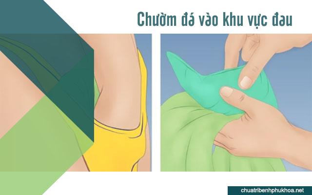 Bạn có thể chườm một túi đá để giảm đau sau khi quan hệ