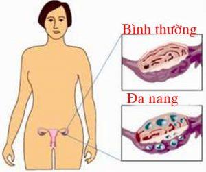 cach-dieu-tri-hoi-chung-buong-trung-da-nang