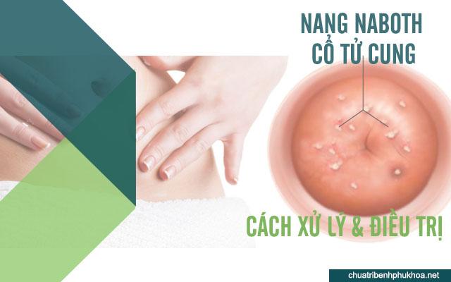 Cách xử lý và điều trị nang naboth ở cổ tử cung