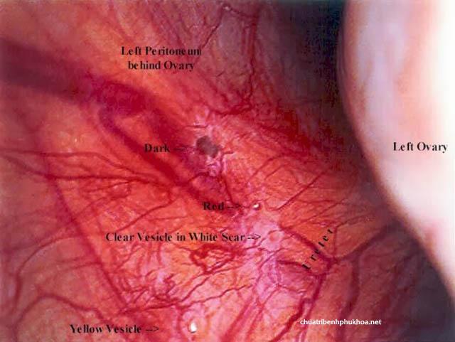 hình ảnh u lạc nội mạc tử cung