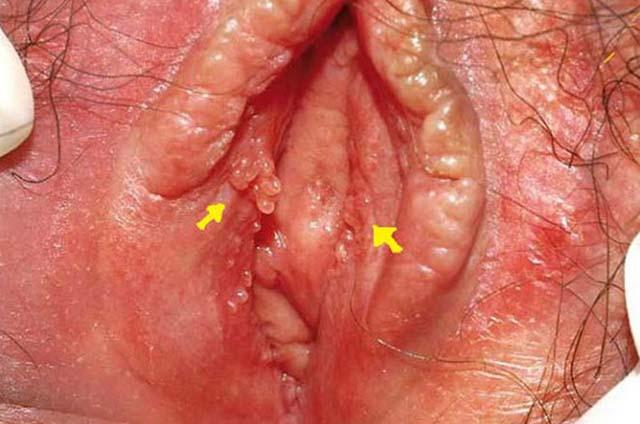 Dấu hiệu bệnh viêm âm đạo thường gặp nhất do nhiễm tạp khuẩn