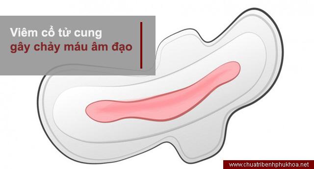 Viêm cổ tử cung gây chảy máu âm đạo bất thường