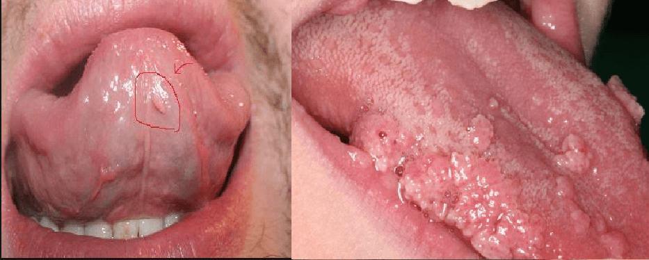 Biểu hiện bệnh sùi mào gà ở lưỡi
