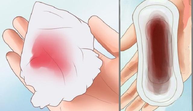 Phân biệt ra máu hồng khi mang thai và máu hồng trước kì kinh