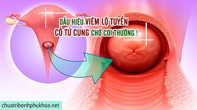 Triệu chứng của bệnh viêm lộ tuyến cổ tử cung