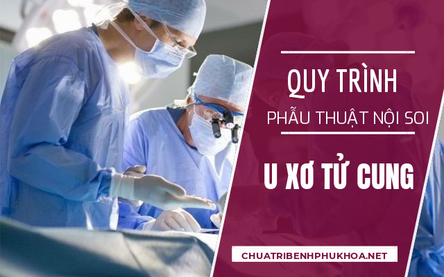 quy trình mổ u xơ tử cung bằng phương pháp nội soi