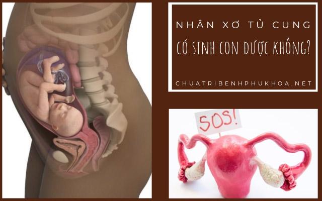 nhân xơ tử cung có mang thai được không